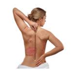 Причины и лечение псориаза