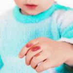 Как лечить ожог у ребенка