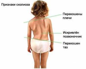 Сколиоз у детей лечение