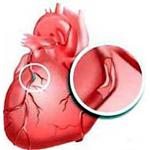 Причины ишемическая болезнь сердца