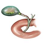 Признаки желчнокаменной болезни