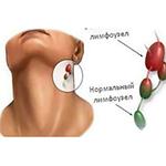 Опухоль лимфатических узлов