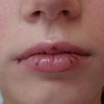 Болезни губ