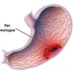 Проявления рака желудка