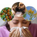 Как снять отек при аллергии