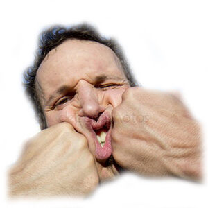 перелом верхней челюсти последствия