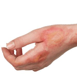 дерматит симптомы и лечение