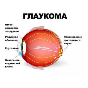 определить глаукому