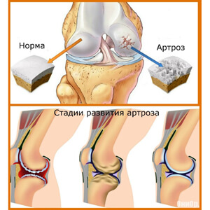 заболевания суставов